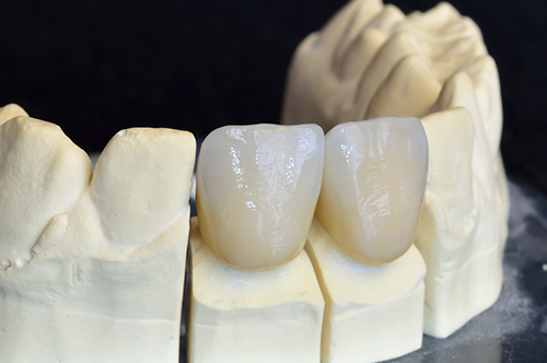 Ceramic crowns that encircles tooth structure or a dental implant. This ceramic crown can also be used for discolored or stained teeth.