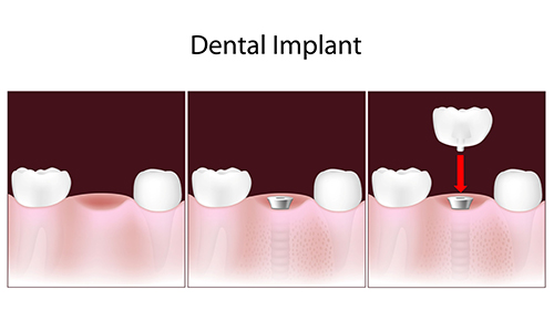 Picture of the process of inserting a dental implant to restore an individual's mouth and teeth.