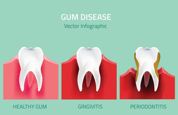 Picture of the signs and various levels of gum disease, which is also known as periodontal disease or gingivitis.