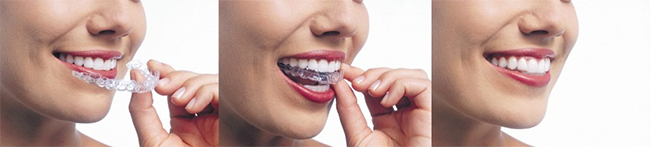 Women placing Invisalign clear aligners. A clear way to straighten your teeth.
